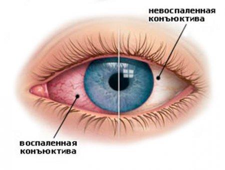 Причины гиперемии конъюнктивы глаза