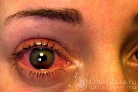 Симптом «давления в глазах»