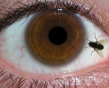 Мушки перед глазами: причины и методы лечения