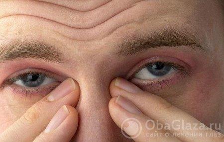 Слезотечение глаз