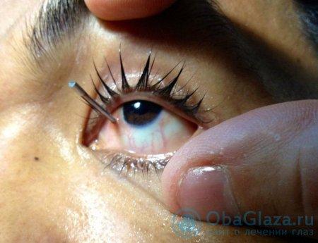 Травма глаза (виды травм и их лечение)