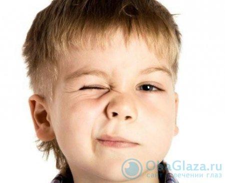 Блефароспазм глаз