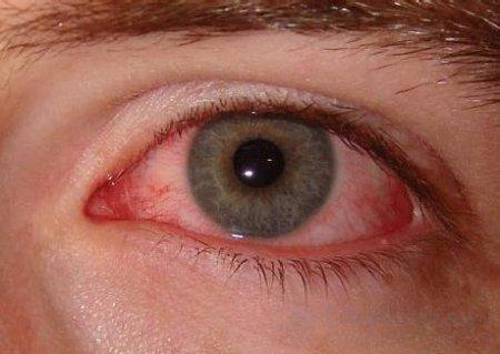 Конъюнктива глаз