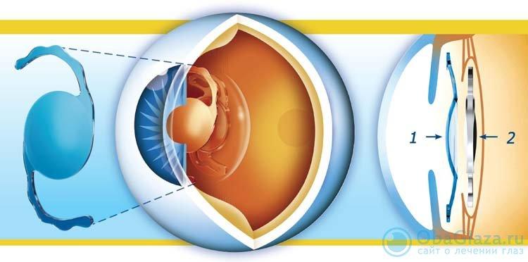 Замена хрусталика: шанс вернуть зрение