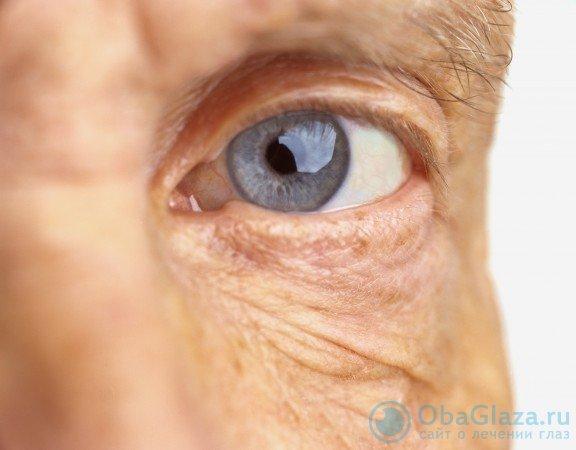 Операционное лечение катаракты