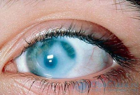 Полное и частичное помутнение роговицы глаза