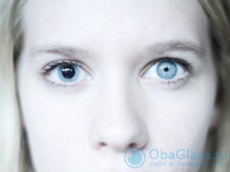 Анизокория (разный диаметр зрачков)