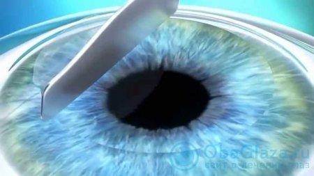 Фоторефракционная кератэктомия