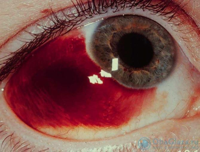 Гемофтальм: кровоизлияние в глазное яблоко