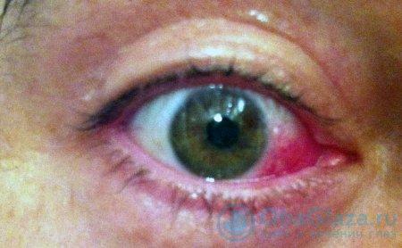 красные белки глаза
