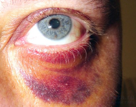 Как удалить синяк под глазом от удара в домашних условиях быстро