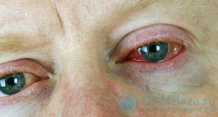 Инфекционное воздействие на глаз