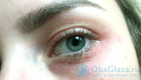 Раздражение под глазами причины и лечение