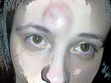 Травмы глаз