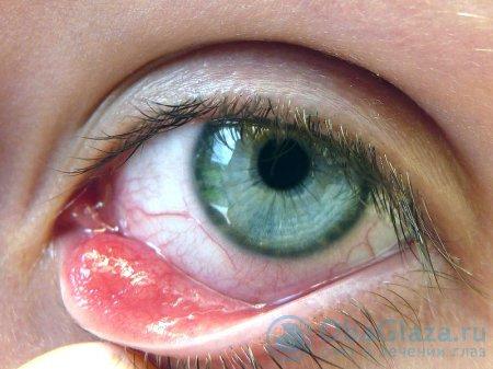 Что такое ячмень глаза