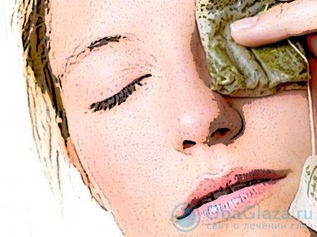 Народное лечение ячменя