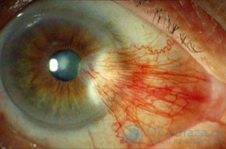 Пленка на глазу человека причины и лечение
